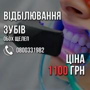 Відбілювання зубів ВСЬОГО 1100 грн. +Поверхнева чистка БЕЗКОШТОВНО.